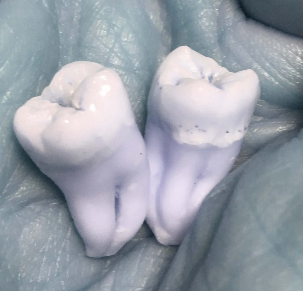 Two wisdom teeth are cupped in a hand. The enamel stands out with creamy yellow-white above light purple roots that bent together like legs or fingers. They are snuggled together deep in the light blue-grey palm. Palm lines run deep underneath.